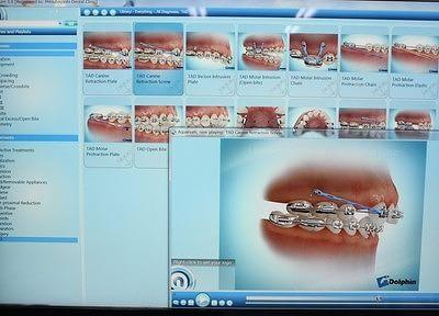 豊明駅 出口車8分 みつばやし歯科・矯正歯科クリニックの院内写真6