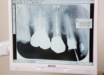 出町柳駅 出口車6分 医療法人社団清和会 井上歯科医院(左京区)の院内写真6