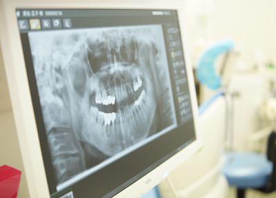 三鷹駅北口 徒歩14~17分 岡歯科医院の岡歯科医院の治療説明風景写真3