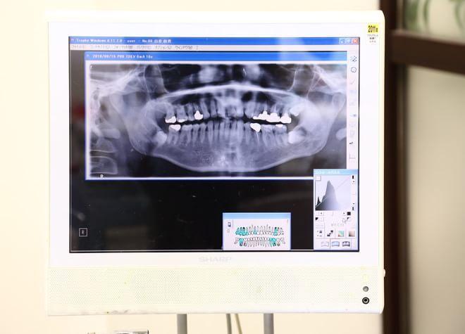 治療説明は視覚的にわかりやすく!「歯科用CT」を採用
