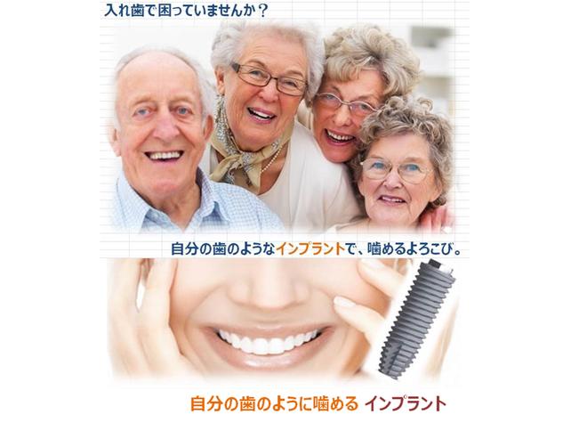 紫波郡の歯医者さん!おすすめポイントを掲載【3院】