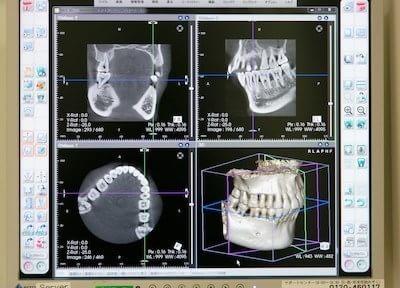 豊中駅 南口徒歩 1分 みやもと歯科クリニック(旧とよなかデンタルクリニック)の院内写真7